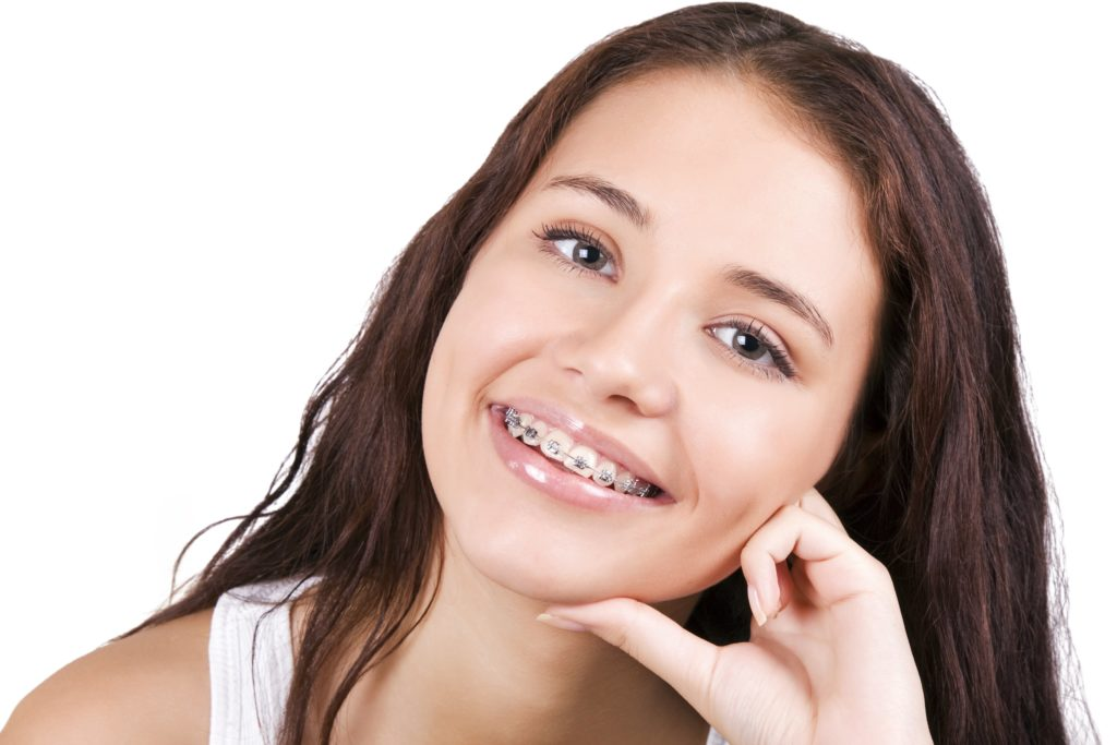 How long do you have to wear braces? | Piper Orthodontics